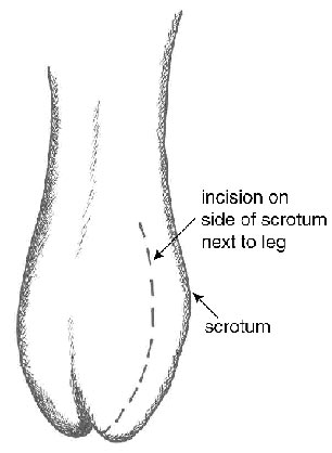 Diagram showing the location of one possible incision